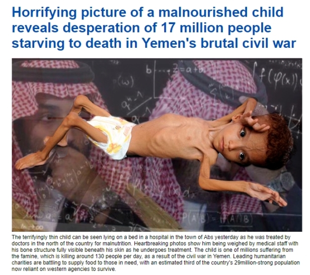 180819 Saudia Arabia Starving Yemen MBS